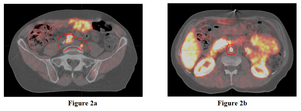Figure 2 shows the caudal gross tumor volume and the planned treatment volume boost for prostate cancer