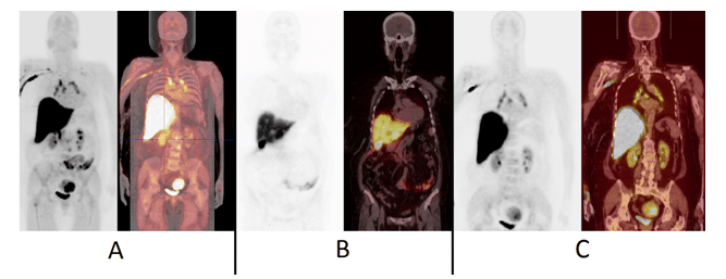 Figure 5. 18F-FES-PET images of patient No.14, a 64-year-old-female with T2N2M0 infiltrative ductal breast cancer in the left breast