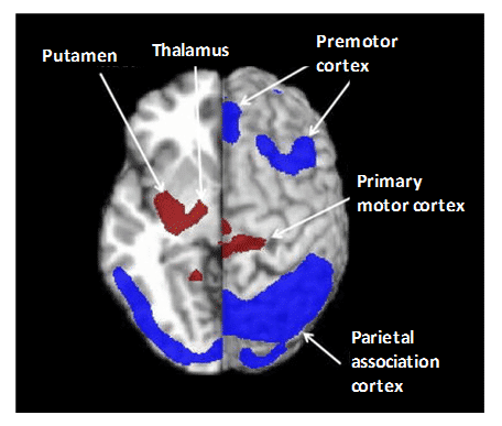 Figure 10 shows the pattern of cerebral glucose metabolism in Parkinson's disease.