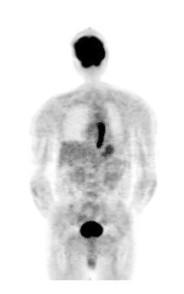 Figure 7 shows the [18F]FDG PET imaging of an esophageal cancer
