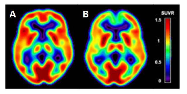 Figure 9. Cerebral hypometabolism in early-stage Alzheimer's disease.