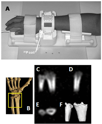 Figure 15. 31P solid-state MRI visualisation of bone mineral in human wrists.