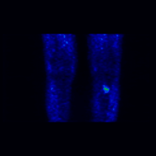 Figure 2. Coronal view of fused 11C-choline PET/CT showing physiological distribution of the tracer. No pathological 11C-choline uptake sites could be detected.