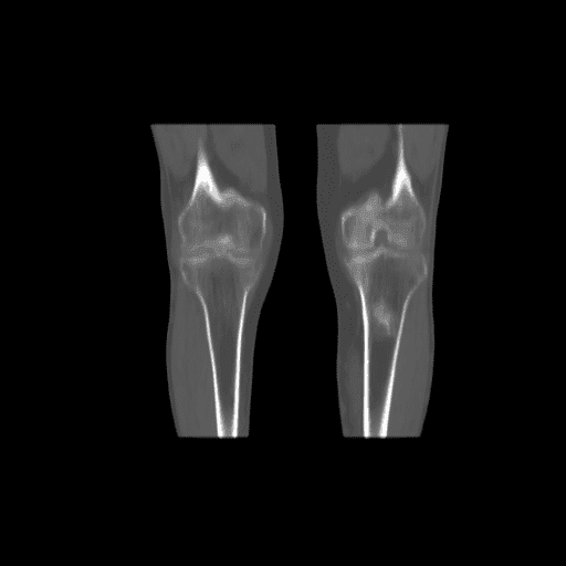 Figure 3B. Coronal view of CT (B, bone window), of the inferior limb at knee height. There is a region of increased uptake of 11C-choline in the area of bone thickening evident in the CT scan.