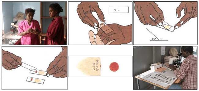 Blood smear workflow for Malaria detection