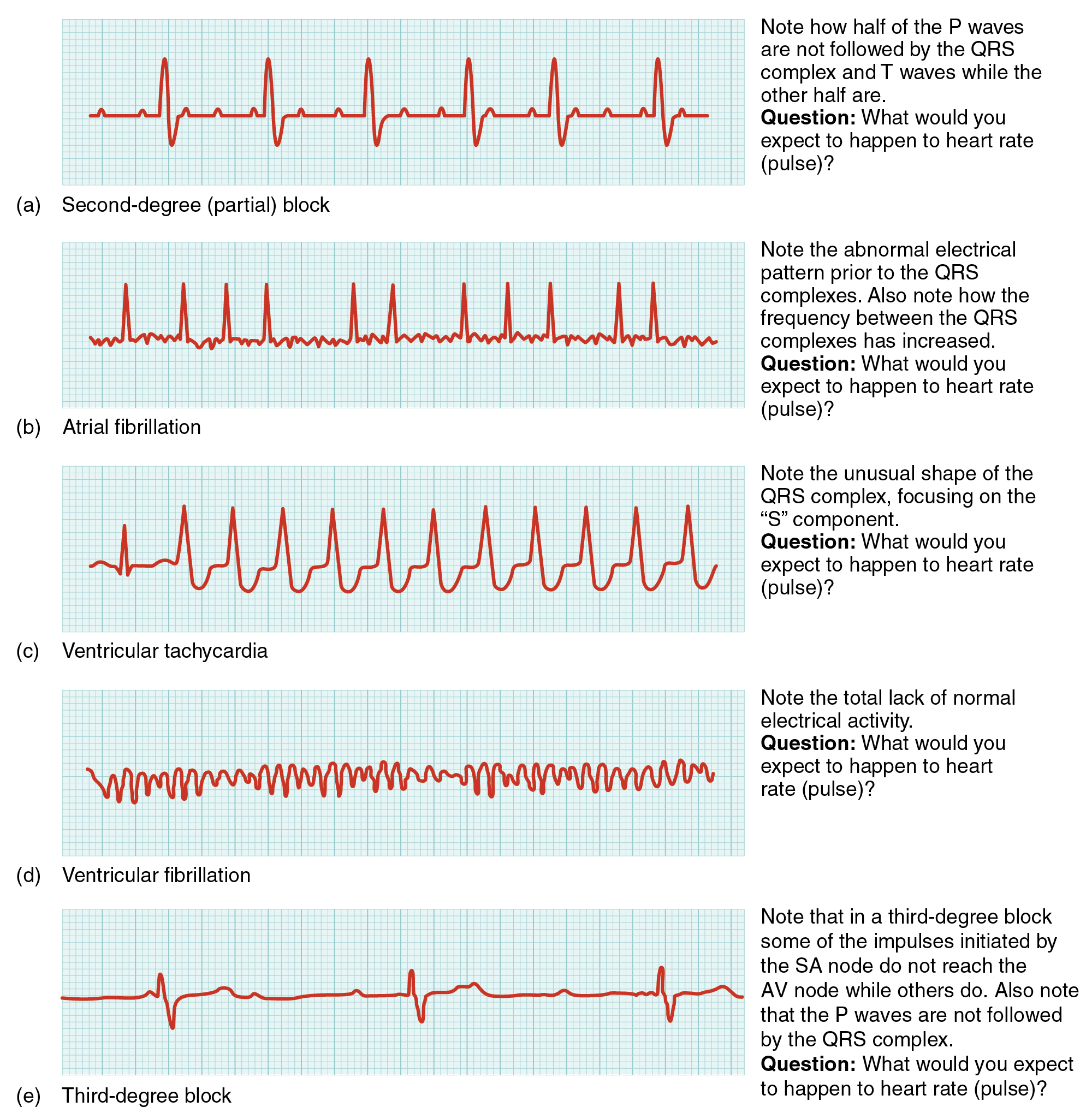 19 2 Cardiac Muscle And Electrical Activity Anatomy And