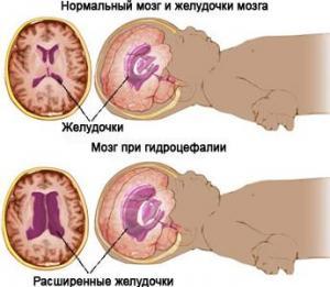 Гидроцефалия после шунтирования у взрослых