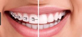 CONSEJOS Y TIPOS DE ORTODONCIA: Cómo cuidar nuestros dientes mientras usamos ortodoncia.