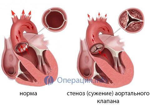 Восстановление после операции на сердце замена клапана