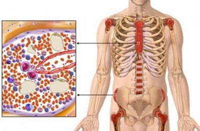 Пункция костного мозга показания и особенности процедуры