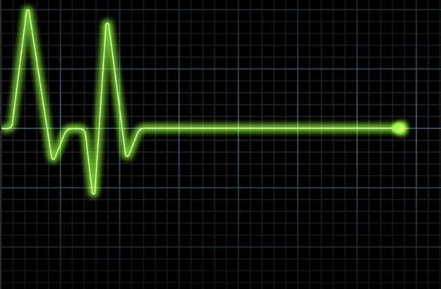 Смерть цвет аномалия медицина здоровье (новости): Ученые разгадали еще одну тайну смерти: эксперты назвали цвет кончины человека – 20.04.2019