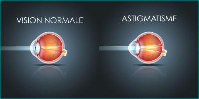 Astigmatisme-correction-laser