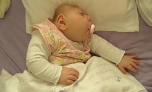MICROCEFALIA-pb-300x182 Em menos de três meses, 18 bebês com microcefalia morrem na PB