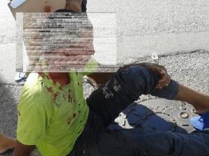 acide-300x225 Jovem fica ferido após  sofre acidente de moto em Sumé