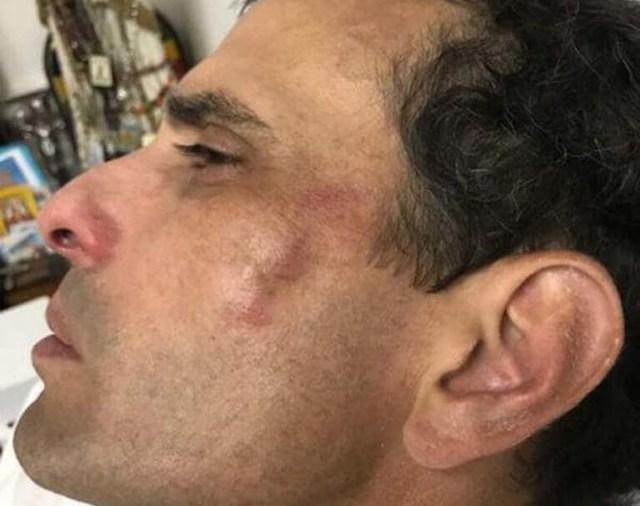 Las fuerzas chavistas atacaron y robaron a Henrique Capriles