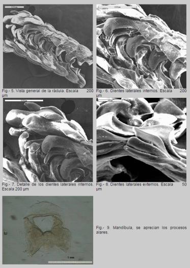 Radula de Polycera faeroensis by Luis Sánchez-Tocino