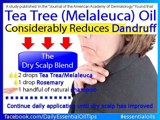 dandruff tea tree oil essentialoilpro.net