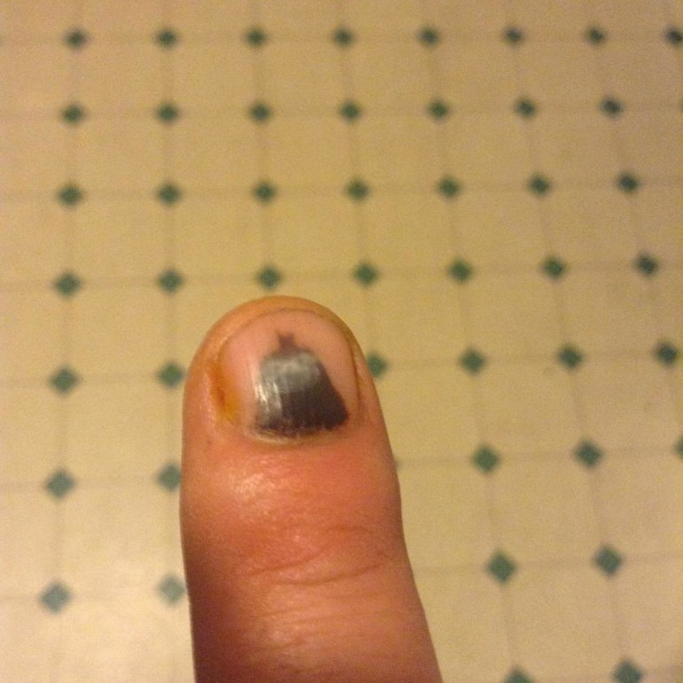 When Batman shows up on your smashed fingernail.