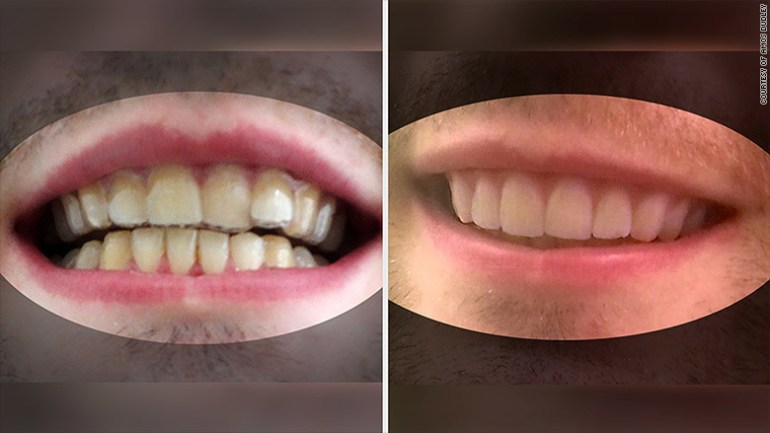 Despite that, his results are pretty impressive. Could this be the beginning of a new, less expensive trend in orthodontia?