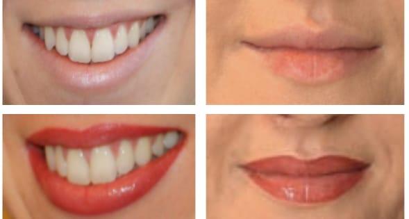 lip contouring