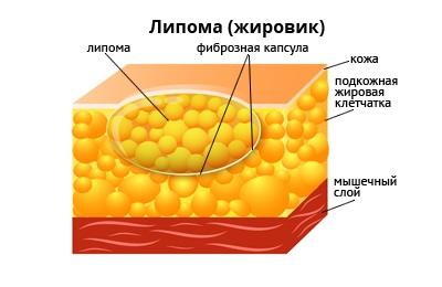 pierderea în greutate și tumorile fibroase)