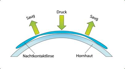 Ortho-K wirkungsprinzip