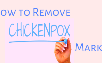 How to Remove Chicken Pox Marks at Home?