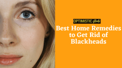 Best Home Remedies to Get Rid of Blackheads on Your Nose