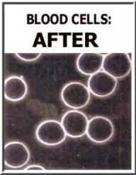 Blood Cels After Detox