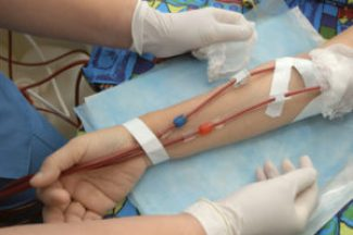 Dialysis - Blood Leaving & Entering the Arm