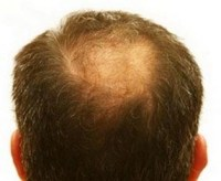 HAIR LOSS PATTERNS - PROTEIN DIGESTION ISSUES 2
