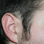 HAIR LOSS PATTERNS - gall bladder 2