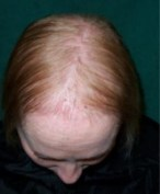 Hair Loss Pattern: Organ Issues And Thin All Over