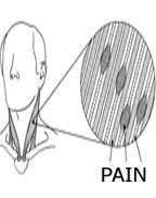 PAIN IN MUSCLE FIBERS