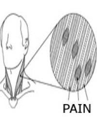 PAIN IN MUSCLE FIBERS