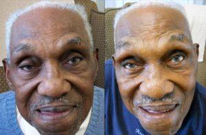 Robert Butler - Before & After