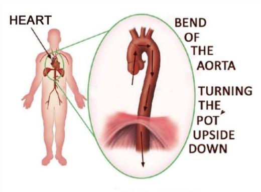 Heart, Aorta