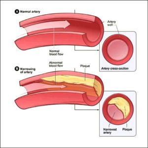 Cholesterol in arteries with labels