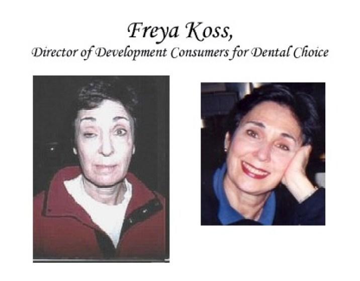 Freya Koss - Mercury, Before & After