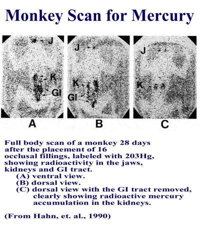 Amalgams and Mercury: Monkey scanned for mercury after having amalgams for 2 weeks.