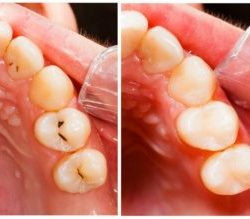 reverse tooth decay, natural reverse cavities