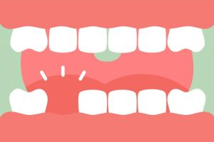 Tooth Loss receding gums pictures