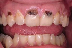 Gum Line Cavity, tooth decay