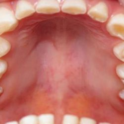 Teeth Grinding pictures, Causes , Treatment and remedy