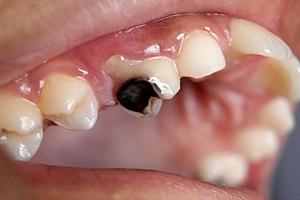 tooth broke in half black inside