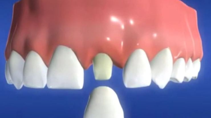 Costs of dental crowns