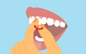 Treatments For Loose Teeth
