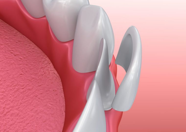 Veneers broken tooth repair