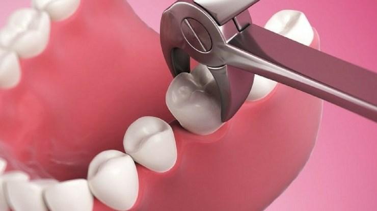 broken tooth extraction cost