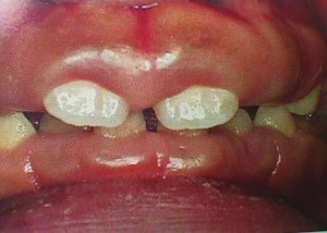 Gingivitis pictures 1